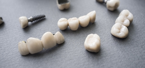 Alle Zahnersatzarten im Vergleich | ERGO